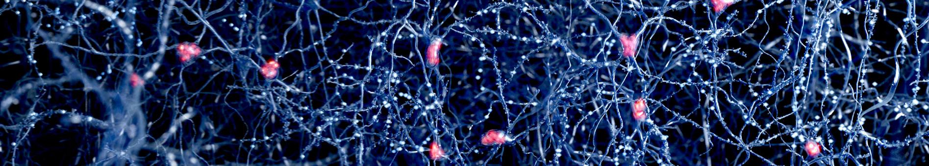 Department of Neurology | NYU Langone Health