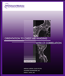 Orientation to Chest MR Imaging with CT Correlation