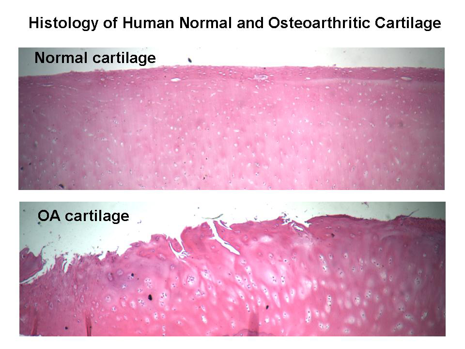 Cartilage Types And Function Bone And Spine
