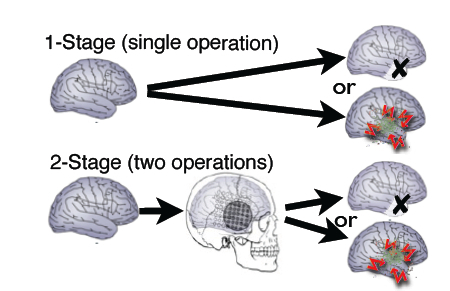 Stages of Epilepsy Surgery
