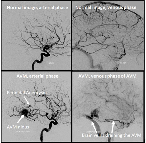brain arteriovenous malformation brain avm bavm radiology