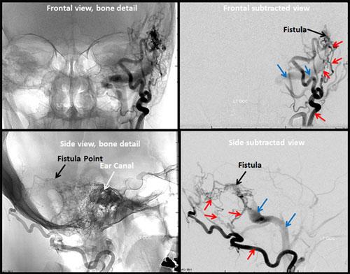 brain dural arteriovenous fistula bdavf radiology