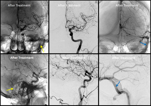 Brain Dural Arteriovenous Fistula (BDAVF) | Radiology