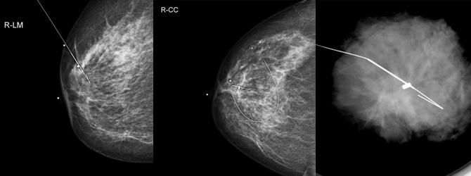 Breast biopsy and needle localization