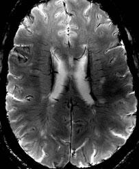 Neuroradiology Fellowship Program | Radiology