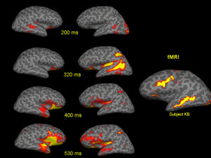 Figure 2: Spatio-temporal brain dynamics for reading words (left: surface-constraint MEG dSPM images at different time intervals; right: fMRI activation to the same task).