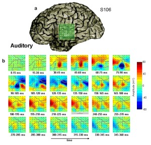 Example of intracranial ERP responses to an auditory speech stimulus recorded on a 8×8 macro-electrode grid