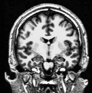 Figure 1: Structural T1-weighted Magnetic Resonance Image, optimized for grey/white matter contrast