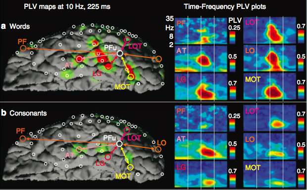 Thesen, T., et al. Sequential then interactive processing of letters and words in the left fusiform gyrus. Nature Communication. Dec 18, 2012.